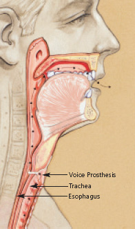 laryngectomy voice prothesis Jack is one of my mums patients (speech pathologist) who has been using a voice prosthesis i uploaded this video to put into my high school assignment on a voice prosthesis hope this helps anyone.